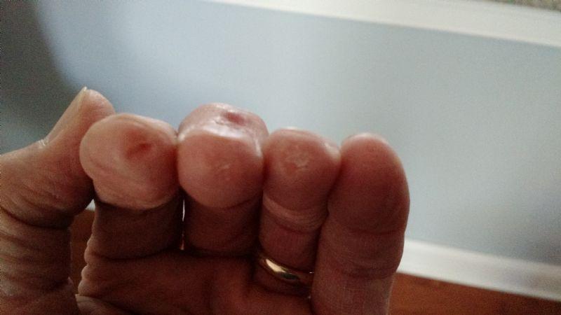 1st finger bruise - Discussion Forums - Flatpicker Hangout